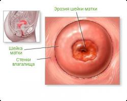 Эрозия матки после родов