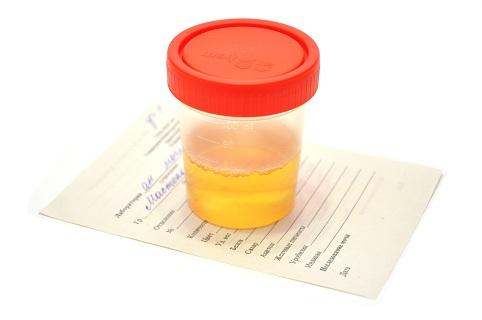 Лейкоциты в моче при беременности - анализы и лечение
