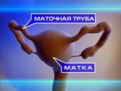 В каком случае назначают операцию при внематочной беременности и насколько серьезной она является?