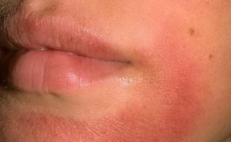 Хороший крем для сухой кожи