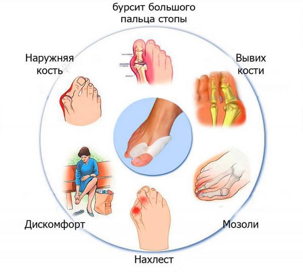 ортопедические разделители для пальцев ног