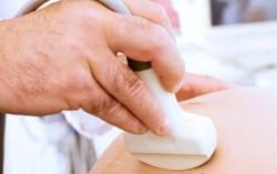 Как лечить низкую плацентацию?