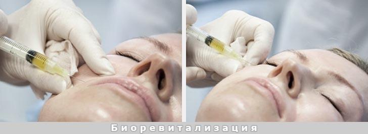 Процедура биоревитализации