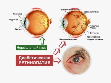Поражения сосудов глаз