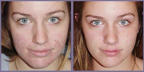 Дієта від прищів на обличчі - 4 кроку назустріч красі
