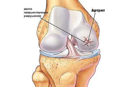 Короткий опис різних дієт при артриті суглобів