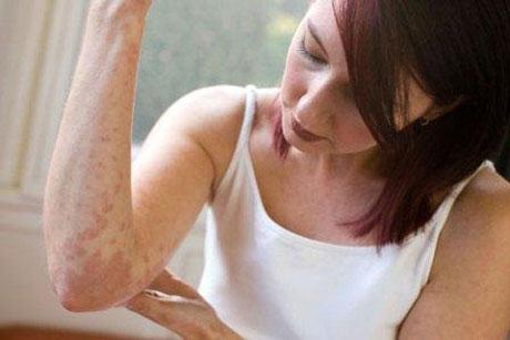 Лікування дієтою при атопічний дерматит