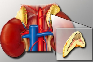 Симптомы заболевания надпочечников у женщин: гормональные опухоли