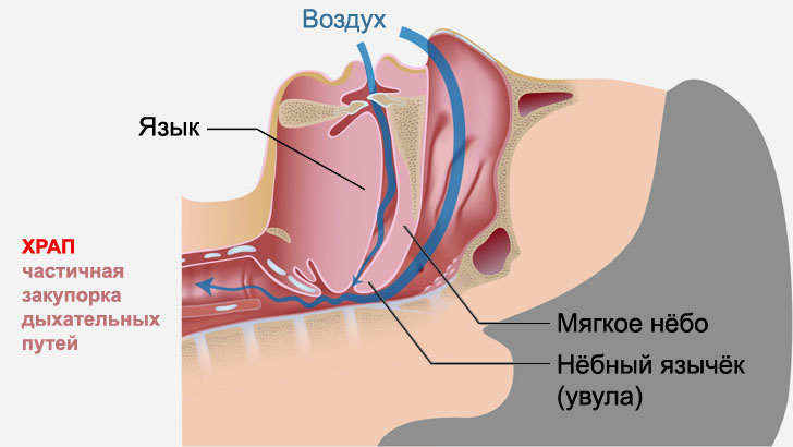 Частичная закупорка дыхательных путей во сне