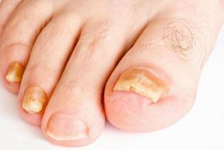 Крем от грибка ногтей на ногах