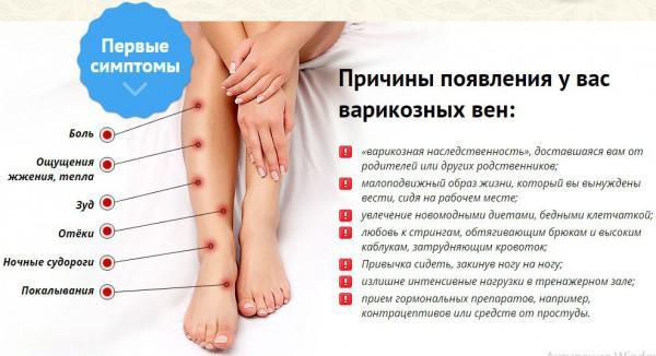 Крем для ног от варикоза и усталости