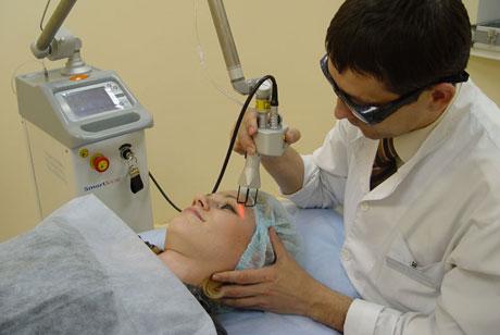 Процедура лазерного пилинга