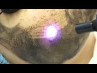 Лазерный карбоновый пилинг