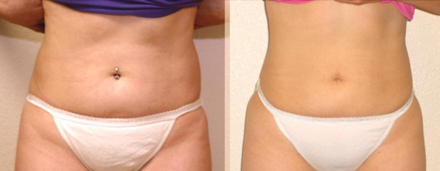 Як прибрати великий живіт? Етапи процесу схуднення. Результати до і після