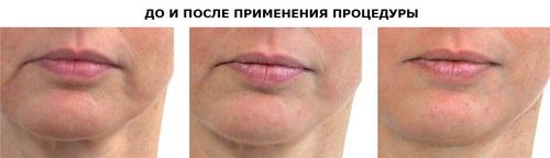 LPG масаж для обличчя: кому і коли необхідний, чи існують протипоказання