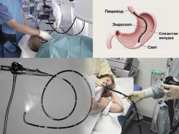 Проведение эндоскопии