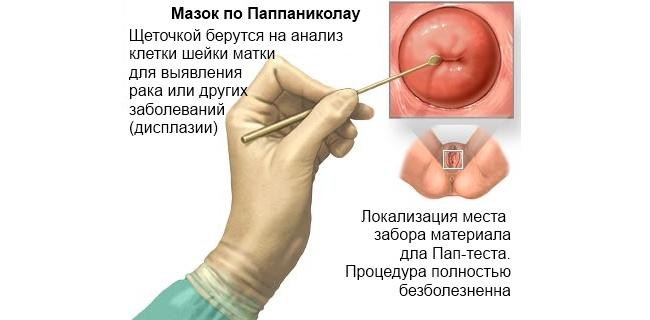 Онкомаркер на рак шейки матки показатели в норме и при
