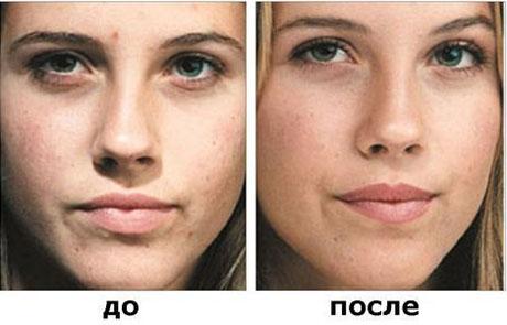 «До» и «после» пилинга салициловой кислотой