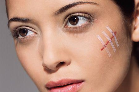 крем от шрамов на лице, после прыщей, ветрянки, травмы, мази, народные средства, отзыв