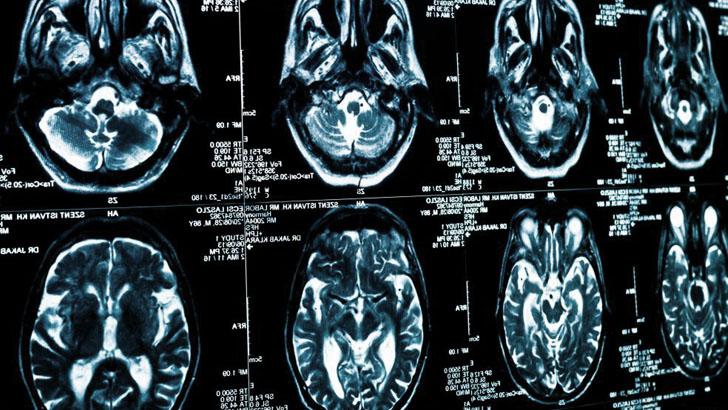 Рентгеновские снимки компьютерной томографии