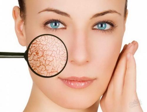Суха шкіра обличчя: причини, правила догляду, кращі рецепти