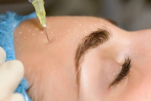 Сучасні методи омолодження обличчя після 50 років: апаратні, уколи краси, домашні процедури