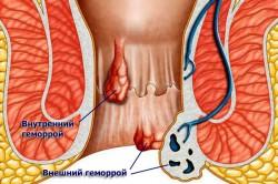 Геморрой после родов - опасное заболевание