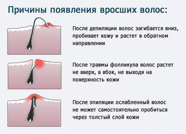 Вросшие волосы после эпиляции как избавиться