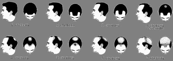 Выпадают волосы что делать у мужчин